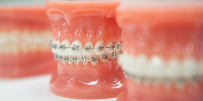 Mbrace Orthodontics Falmouth Maine Orthodontic Office Orthodontic Technology 10 670x335 - Mpowering Smiles with Braces in Falmouth