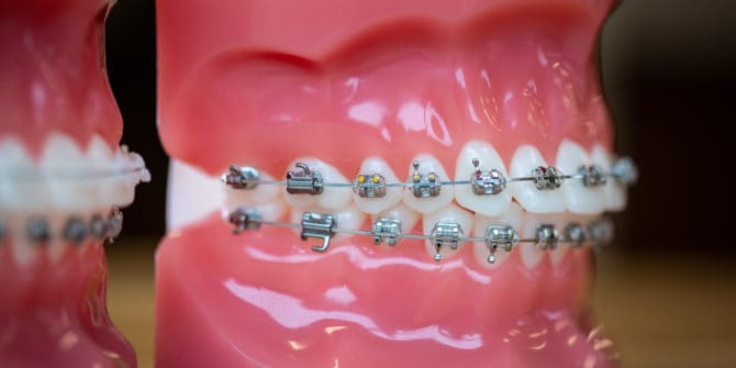 Mbrace Orthodontics Falmouth Maine Orthodontic Office Orthodontic Technology 31 670x335 - Mpowering Smiles with Braces in Falmouth